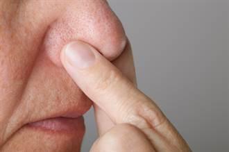 吸薄荷棒能緩解鼻塞 其實是錯覺 藥師揭恐怖下場