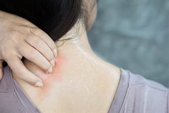 背部突冒怪痘流噁心膿汁 她目睹「傷口鑽出活蛆」嚇傻