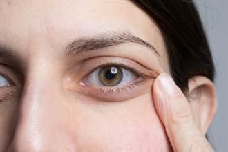 今日最健康》長針眼用手拉眼角 真會好得快?醫師這麼說