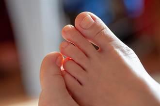 腳趾指甲內凹像湯匙 幼兒很常見 但成年出現要注意