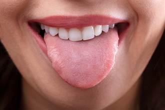 舌頭爛成菜花狀 痛到暴瘦剩35kg 檢查驚覺大事不妙