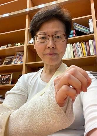 林鄭月娥禮賓府跌倒手骨折 她還原事發經過 最快2周痊癒