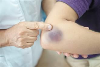 身體沒撞到卻狂冒瘀青 醫揭2警訊:肝臟恐有問題