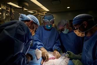 美腎臟移植實驗取得重大突破 基改豬腎移植人體未見排斥