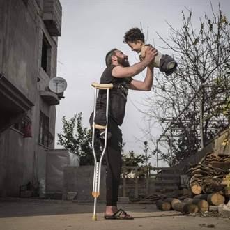 獨腳父親抱起無四肢兒子的燦笑 奪得最佳攝影獎