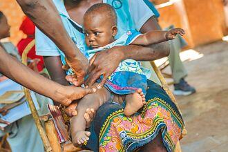 瘧疾疫苗救非洲兒童