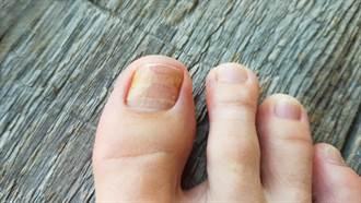 灰指甲不一定是灰色 醫曝3常見症狀:這些人最容易得